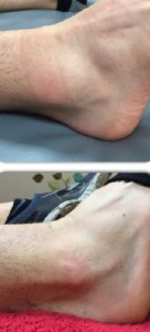 Before After Ankle